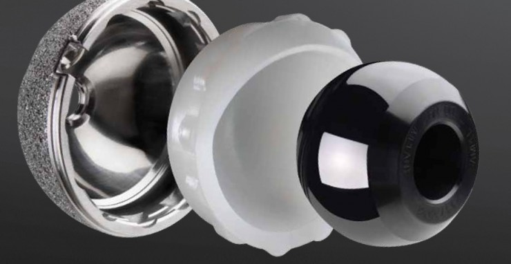 Oxinium hip replacement