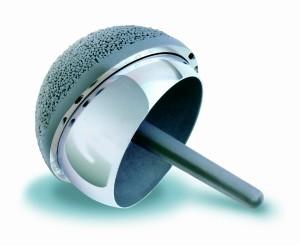 Oberflächenersatz Implantat Huefte
